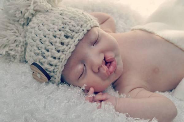 cleft baby