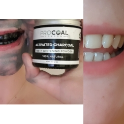 charcoal teeth